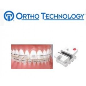 Ortho Technology Brackets – Aesthetic / Avalon Metal Lined Composite Bracket System