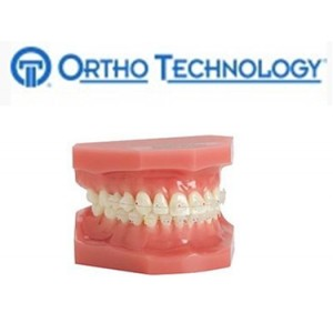 Ortho Technology Brackets – Aesthetic / Orthoflex Composite Bracket System